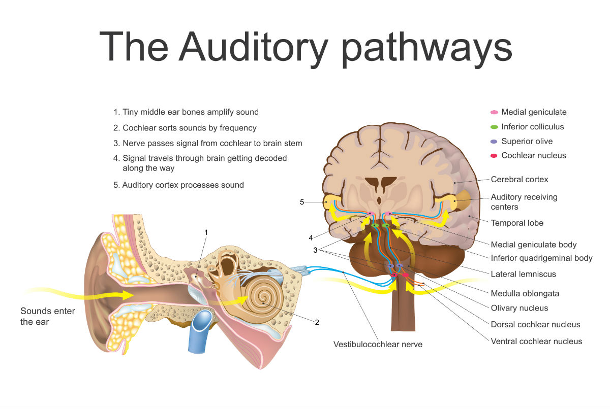 Brain Diagram Auditory Block And Schematic Diagrams