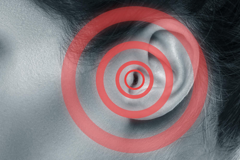 What Is Tinnitus Retraining Therapy?