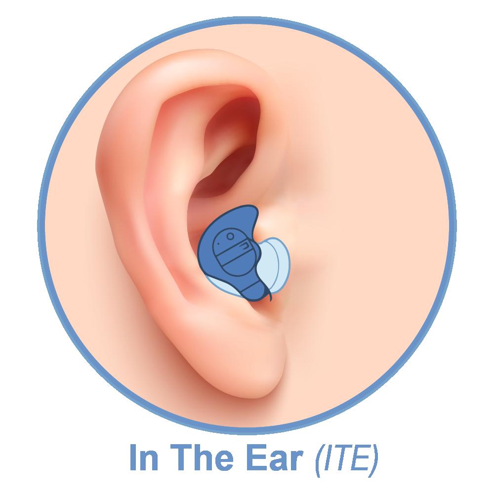 WonderWave™ Rechargeable Hearing Aids - WonderEar